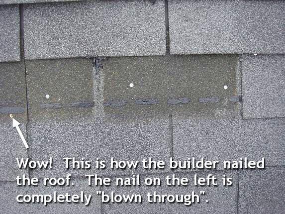 Poor nailing technique